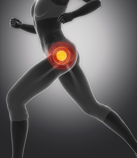 excel physiotherapy and wellness; mascot; lateral hip pain; physiotherapy