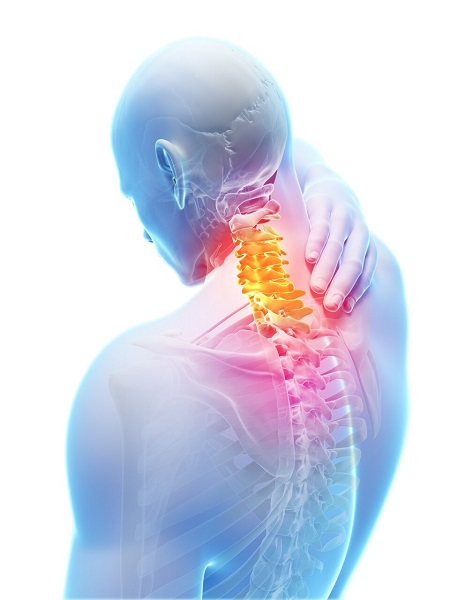 neck pain, neck, physiotherapy, excel physiotherapy and wellness
